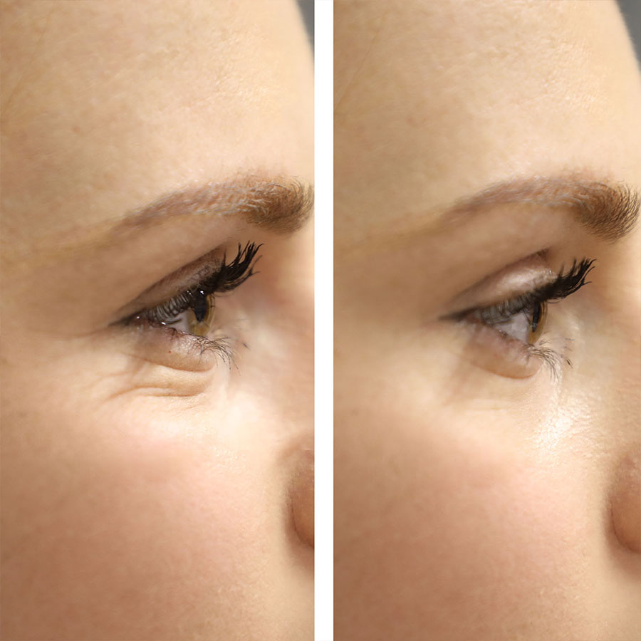 london wrinkle reduction results