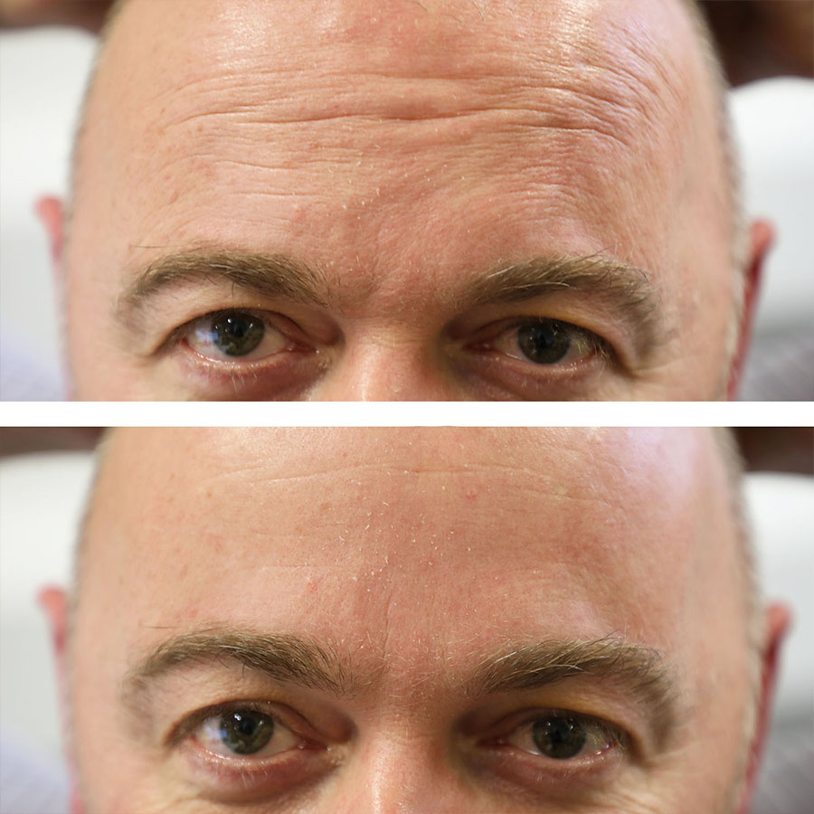wrinkle reduction results in knightsbridge