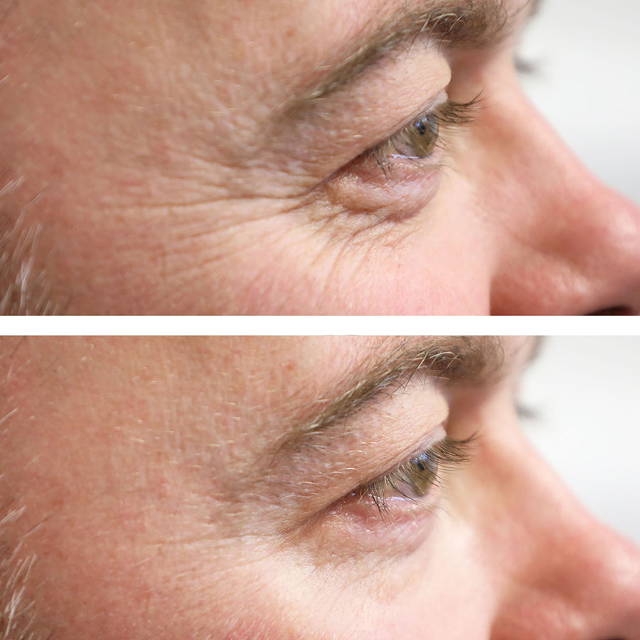wrinkle reduction results in london